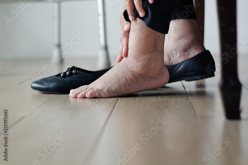 Obraz na płótnie Elderly woman swollen feet putting on shoes