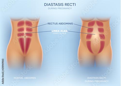 Photo Diastasis Recti during pregnancy, also known as Diastasis Rectus Abdominus or abdominal separation, it is common among pregnant women and post birth