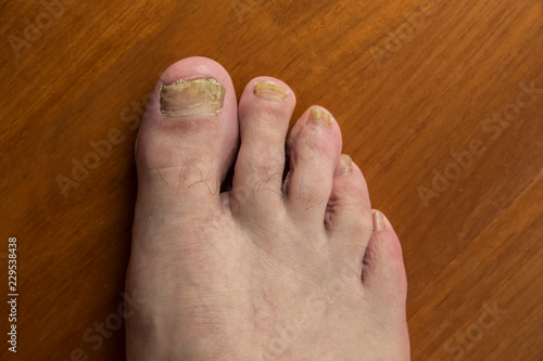 Stampa su Tela onychomycosis with fungal nail infection two feet