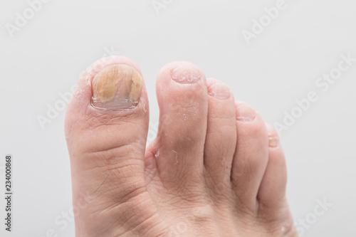 Stampa su Tela Close-up foot of nail fungus