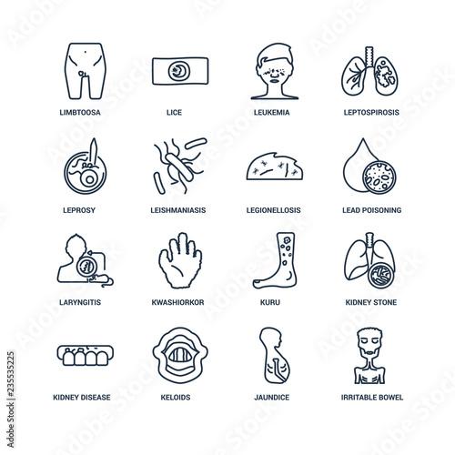 Stampa su Tela Irritable bowel syndrome, Jaundice, Keloids, Kidney Disease (Chr