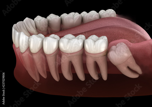 Photo Healthy teeth and wisdom tooth with mesial impaction
