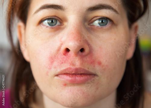 Fototapeta premium twarz kobiety z perioralnym zapaleniem skóry