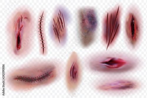 Stampa su Tela Realistic scars