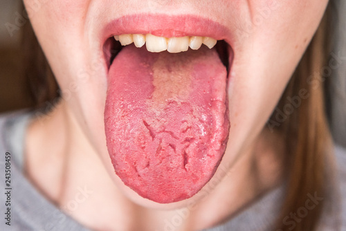Obraz na płótnie Cracks in the tongue. Candidiasis. Candida. Congenital pathology.
