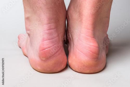 Bump on the back of heel bone called Haglund's deformity on gray background Fototapet