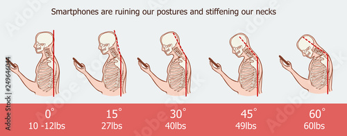 Fotografie, Obraz The bad smartphone postures,the angle of bending head related to the pressure on the spine, vector flat cartoon illustration