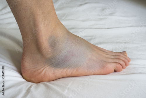 Obraz na płótnie Sprained ankle with bruise adn swelling, female right foot