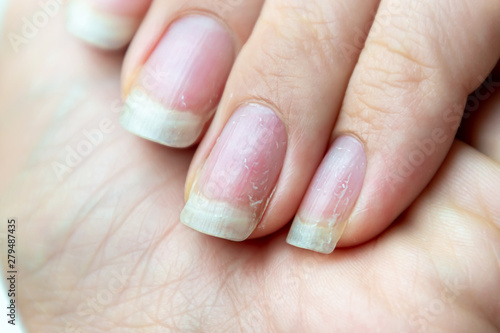 Slika na platnu Close up of damaged nails that have problem after doing manicure