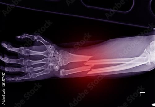 Fotografia, Obraz X-ray forearm fracture shaft of radius and ulnar bone