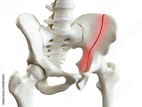 Obraz na plátne 3d rendered medically accurate illustration of a broken pelvis