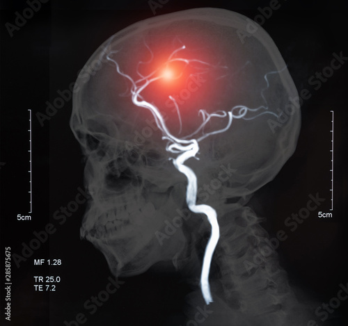 Photo brain stroke