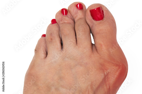 Fotografia Foot with hallux valgus, redness in the inflamed area