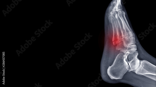 Stampa su Tela Film foot X ray radiograph show toe bone broken ( base of metatarsal fracture or Jones fracture ) from traffic accident