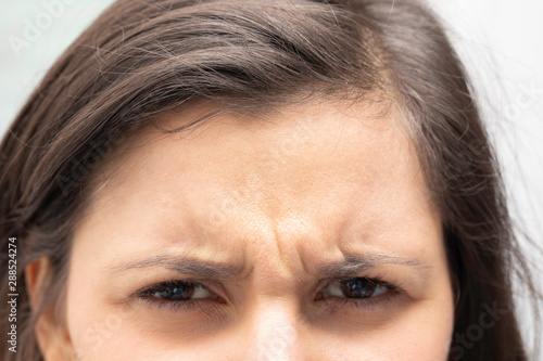 Fotografie, Obraz A closeup view on the frowning forehead of a young caucasian girl with brown hair, with dipped eyebrows and vertical wrinkles, unhappy girl close up