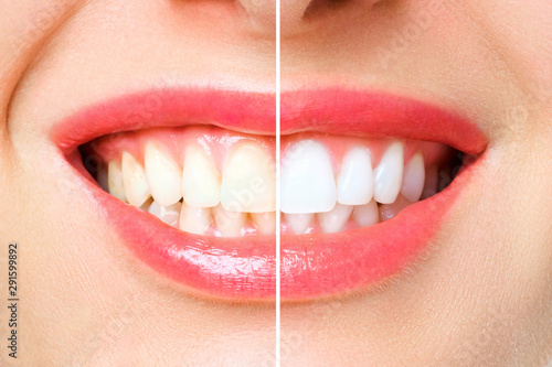 Photo woman teeth before and after whitening. Over white background