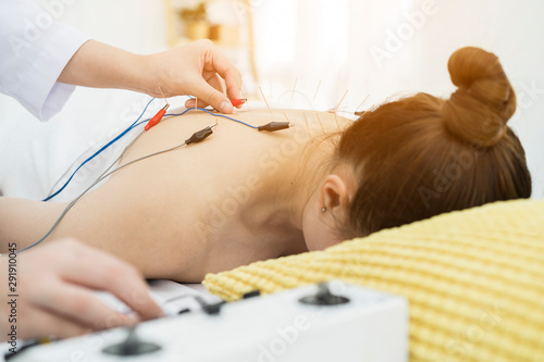 Foto doctor or Acupuncturist applying electroacupuncture on patient's body