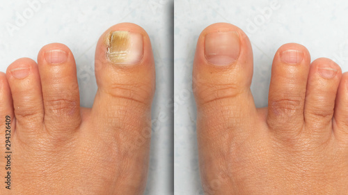 Fotografia Before and after successful treatment for a fungal infection on toe