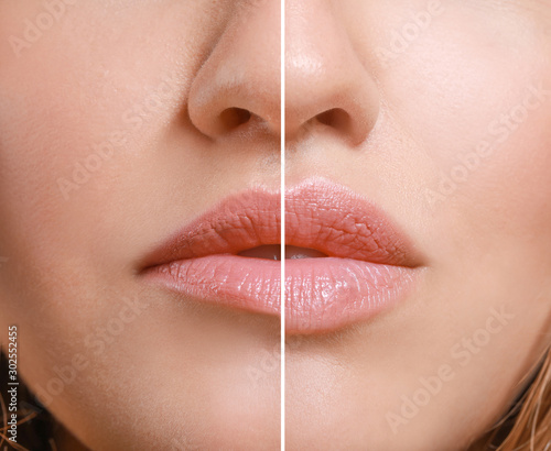 Stampa su Tela Young woman before and after lip enhancement, closeup