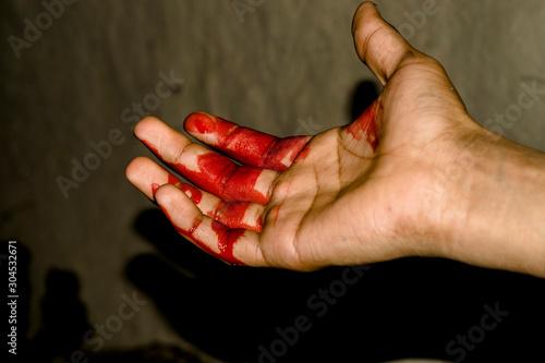 Valokuvatapetti a badly bleeding hand and dark background