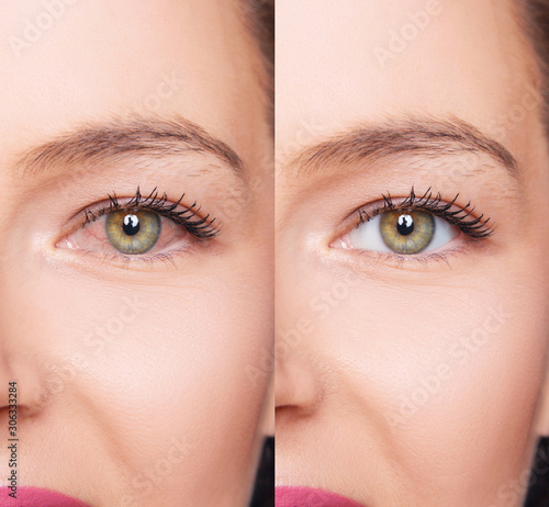 Obraz na plátne Irritated female eyes with redness before and after treatment.