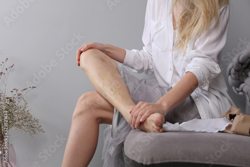 Varicose vein laser surgery recovery and prevention, Compression Stockings Thigh Fototapeta