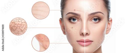 Fotografie, Obraz Female face close-up, showing skin problems