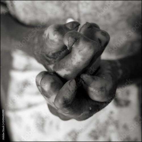 Carta da parati Detail Shot Of Leprosy Hands
