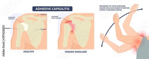 Fotografia Frozen shoulder adhesive capsulitis surgery stiff crush ribs bone lift athletes