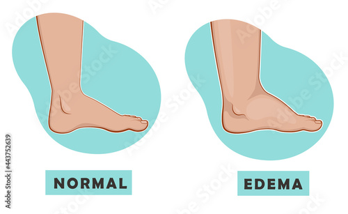 Fotografia A swollen foot and ankle and a normal foot