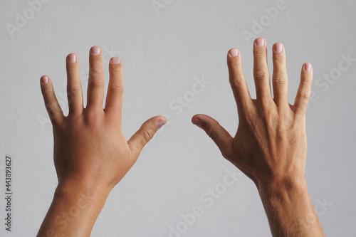 Close-up. Male hand, swollen after a wasp bite. Fototapeta