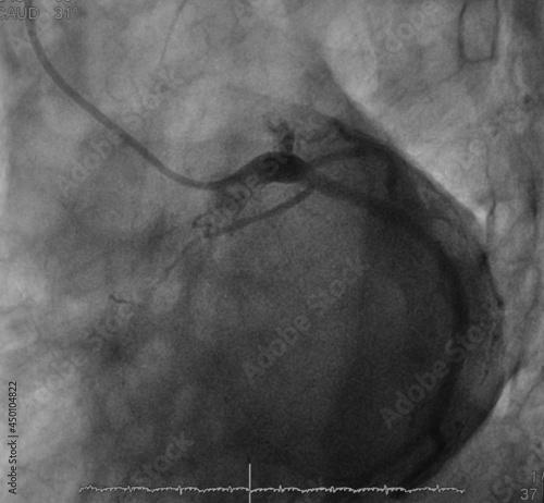 coronary angiogram (CAG) was showed chronic total occlusion (CTO) at mid part of Tapéta, Fotótapéta