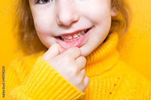 Obraz na plátně Girl shows her teeth-pathological bite, malocclusion, overbite