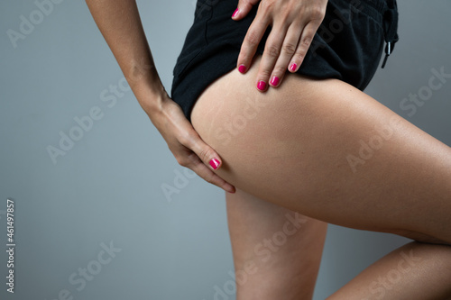 Slika na platnu Woman in black shorts shows the hip and thigh,real skin on buttocks, stretch marksov er gray background