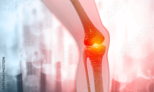 Foto 3d rendered medically accurate illustration of an arthritic knee joint